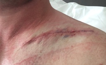 Private immediately post-op